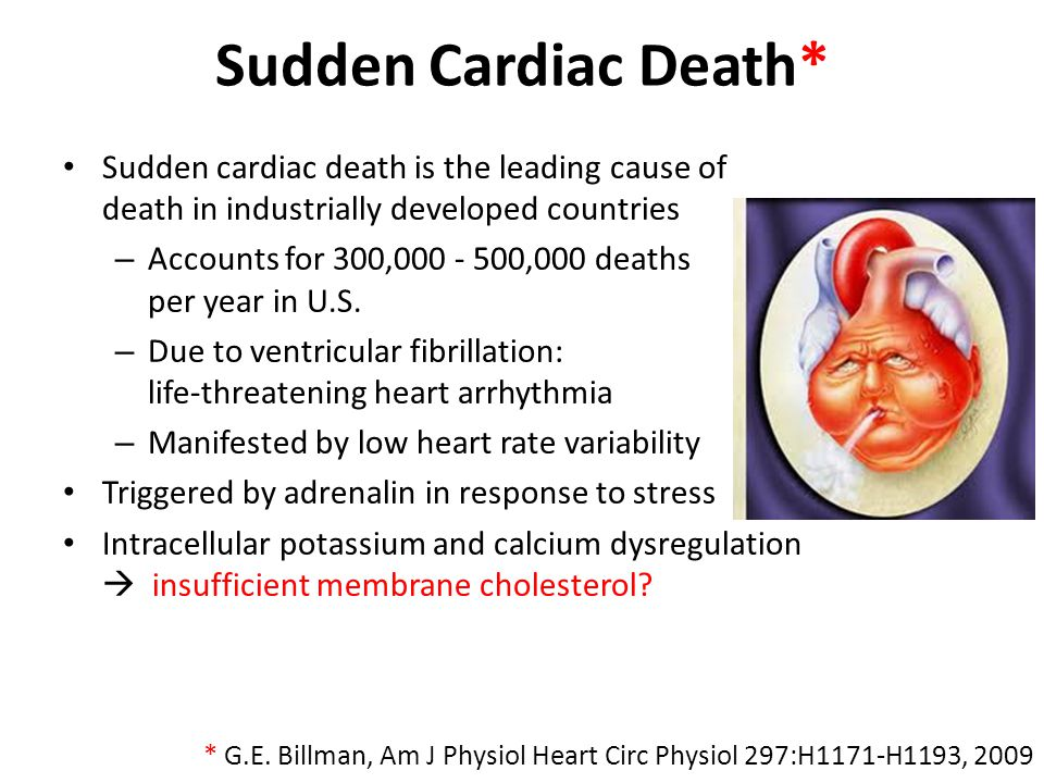 Sudden Cardiac Death* Sudden cardiac death is the leading cause of death in industrially developed countries.