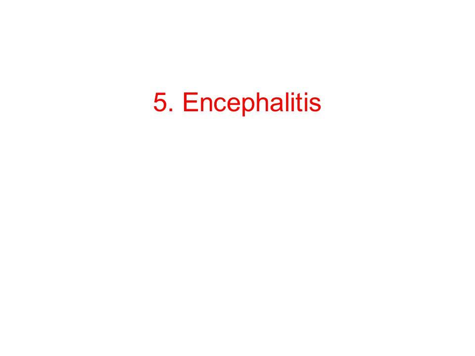 5. Encephalitis