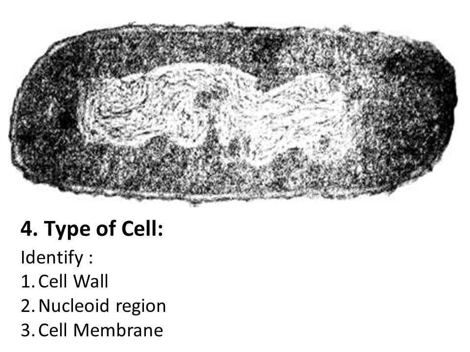 4. Type of Cell: Identify : Cell Wall Nucleoid region Cell Membrane