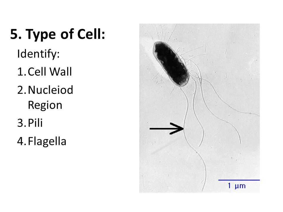 5. Type of Cell: Identify: Cell Wall Nucleiod Region Pili Flagella