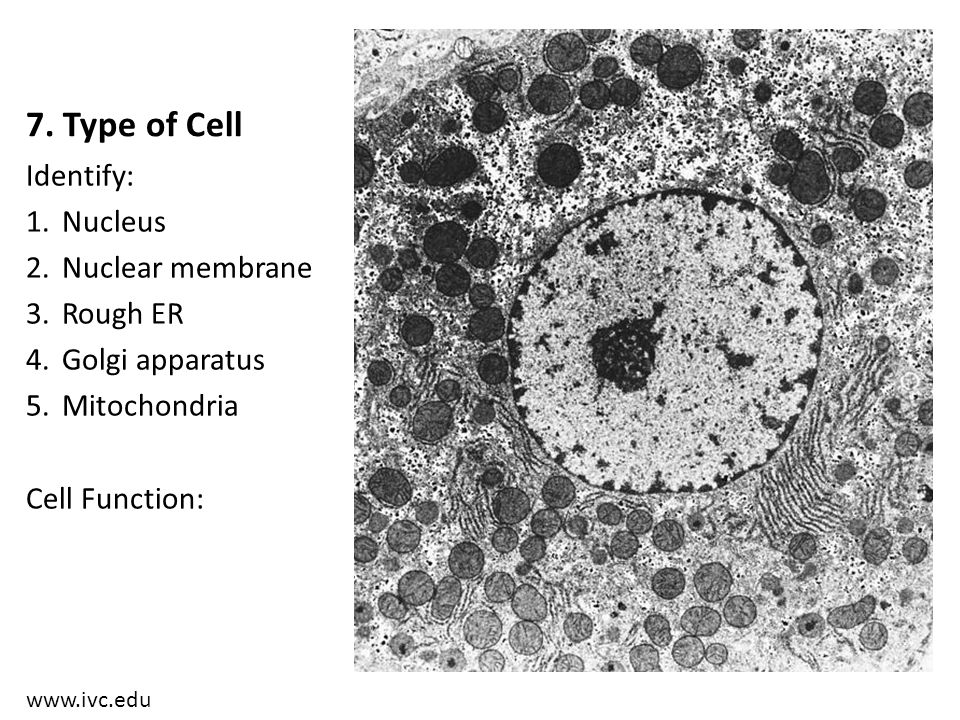 7. Type of Cell Identify: Nucleus Nuclear membrane Rough ER