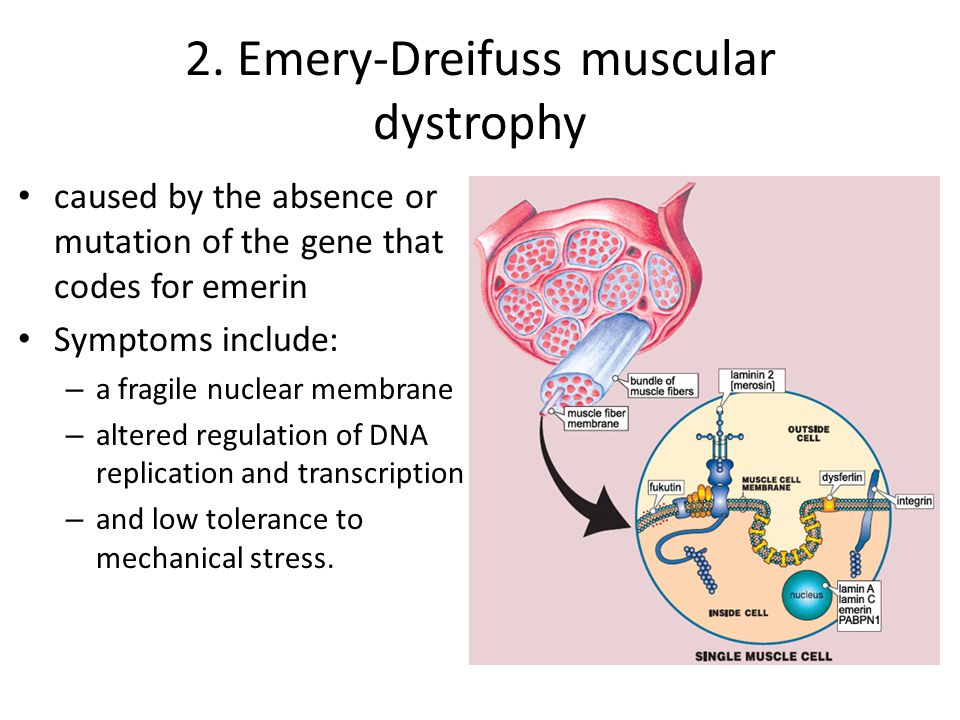 2. Emery-Dreifuss muscular dystrophy