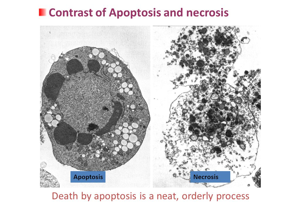 Death by apoptosis is a neat, orderly process