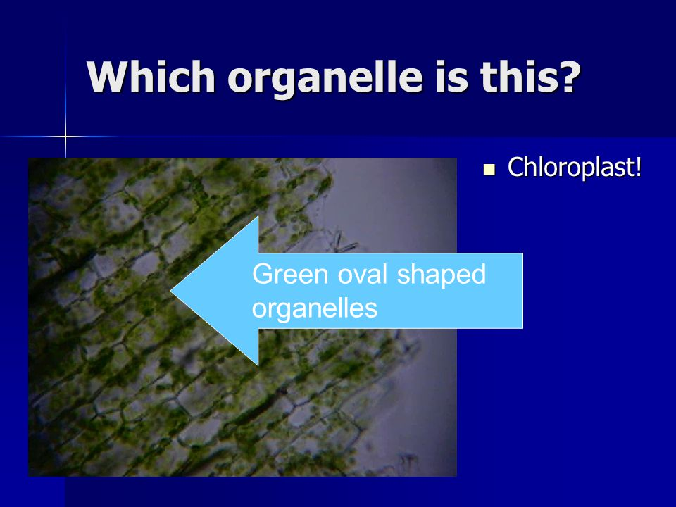 Which organelle is this