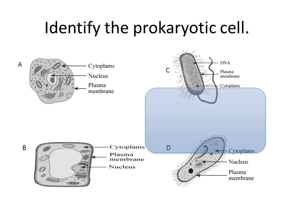 Identify the prokaryotic cell.