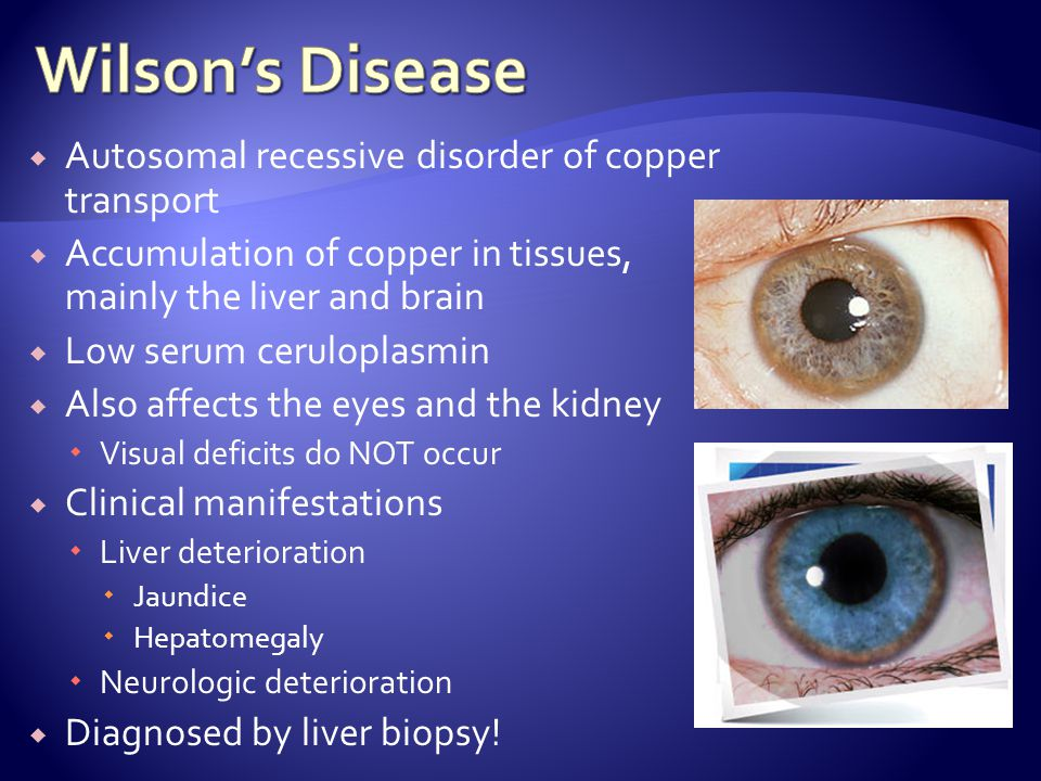 Wilson's Disease Autosomal recessive disorder of copper transport