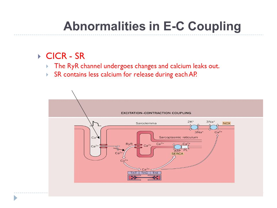 Abnormalities in E-C Coupling