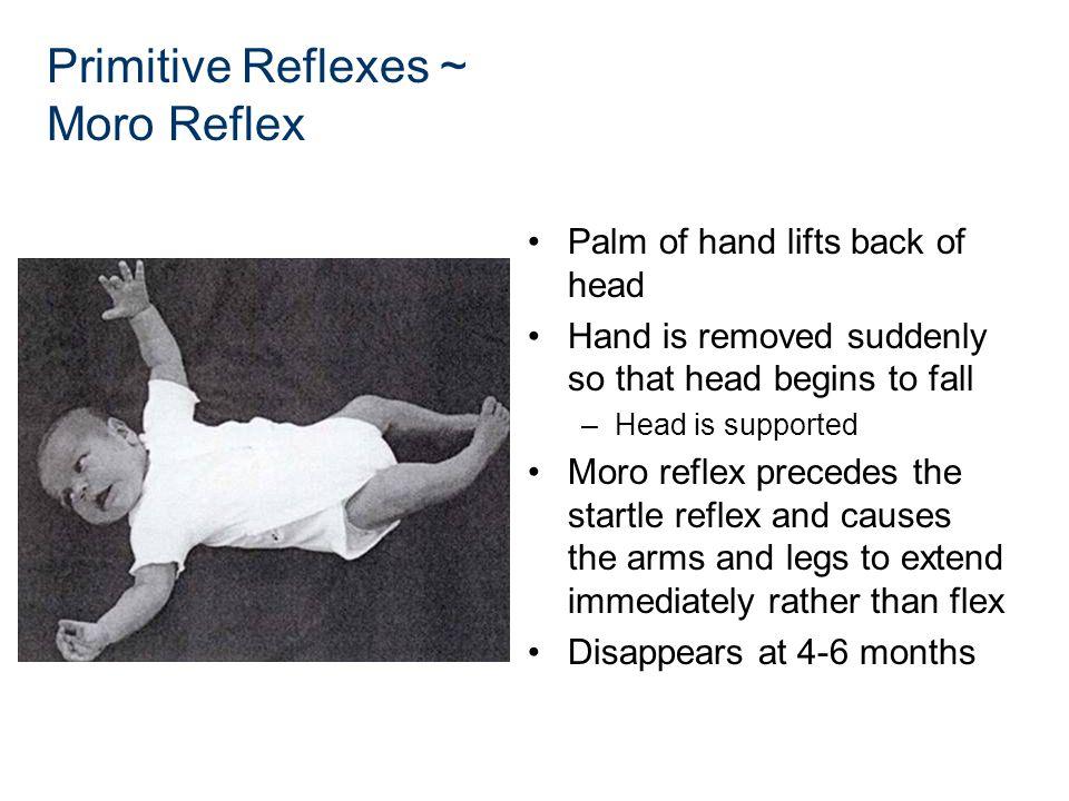 Primitive Reflexes ~ Moro Reflex