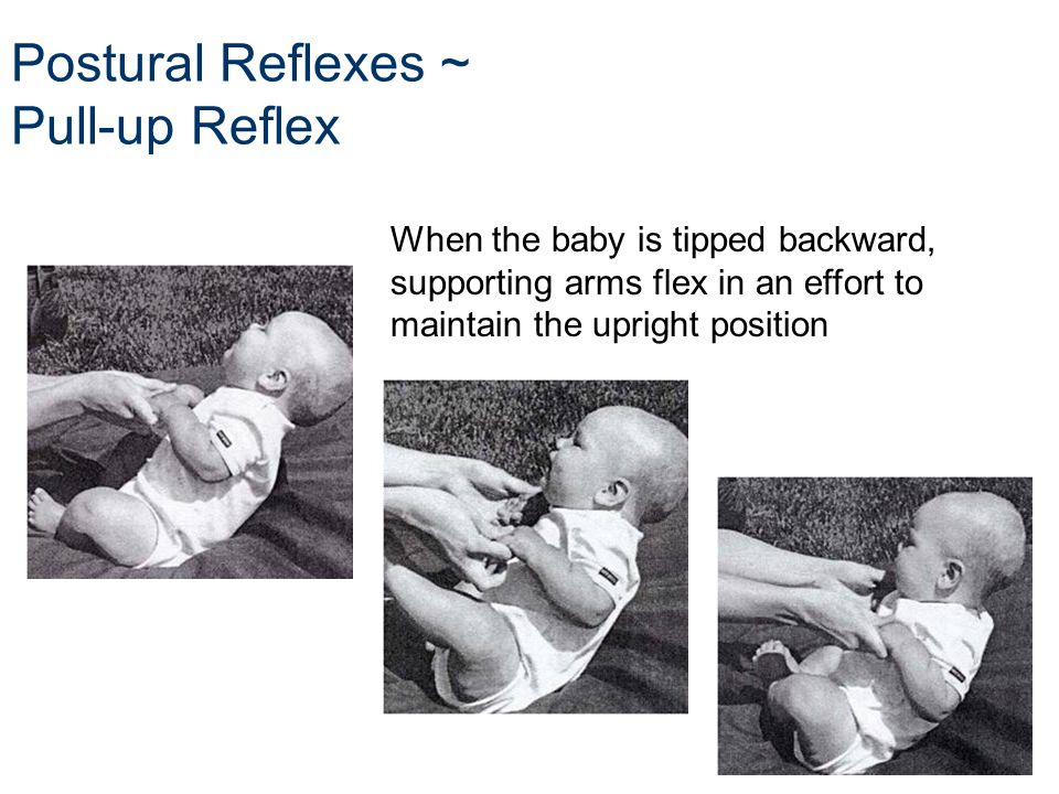 infant reflex Newborn reflexes moro reflex - this is sometimes referred to as the startle reaction, startle response, startle reflex or embrace reflex it is more commonly known as the moro response or moro reflex after its discoverer, pediatrician ernst moro.