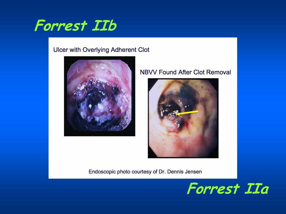 Forrest IIb Forrest IIa