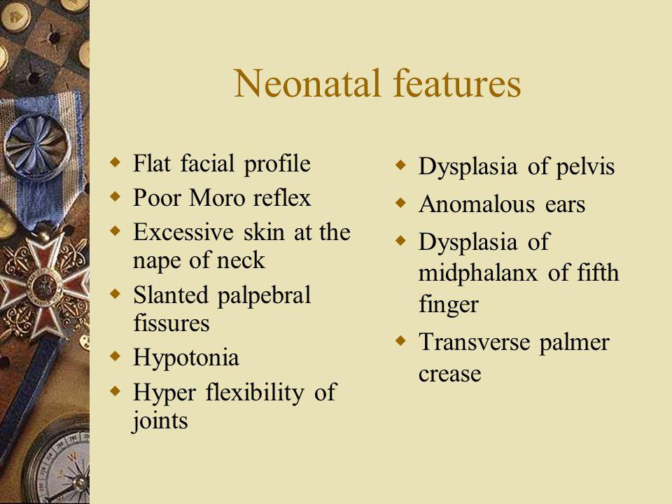 Neonatal features Flat facial profile Poor Moro reflex