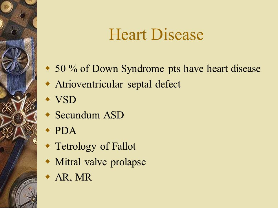 Heart Disease 50 % of Down Syndrome pts have heart disease