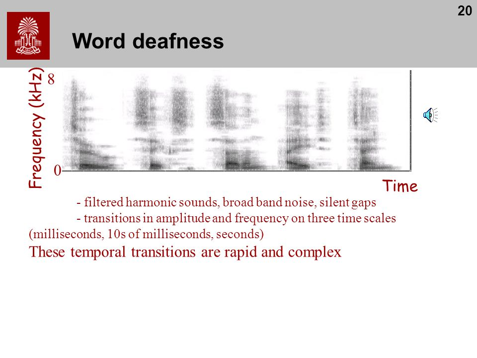 Word deafness 8 Frequency (kHz) Time