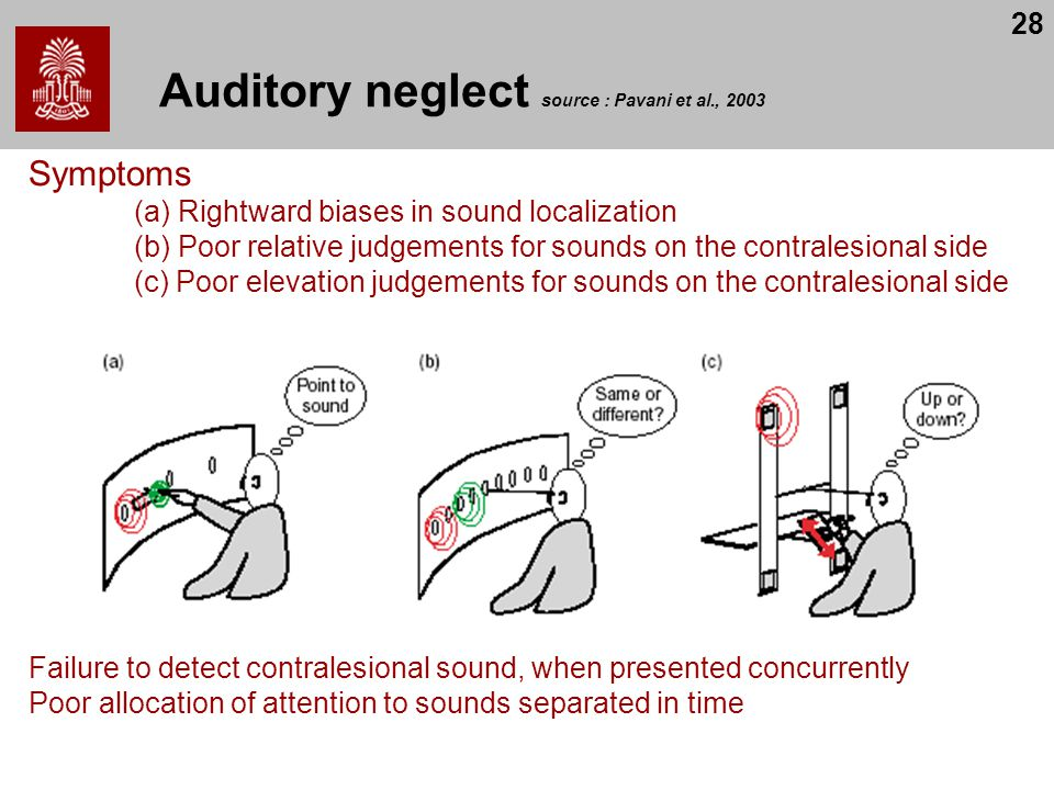 Auditory neglect source : Pavani et al., 2003
