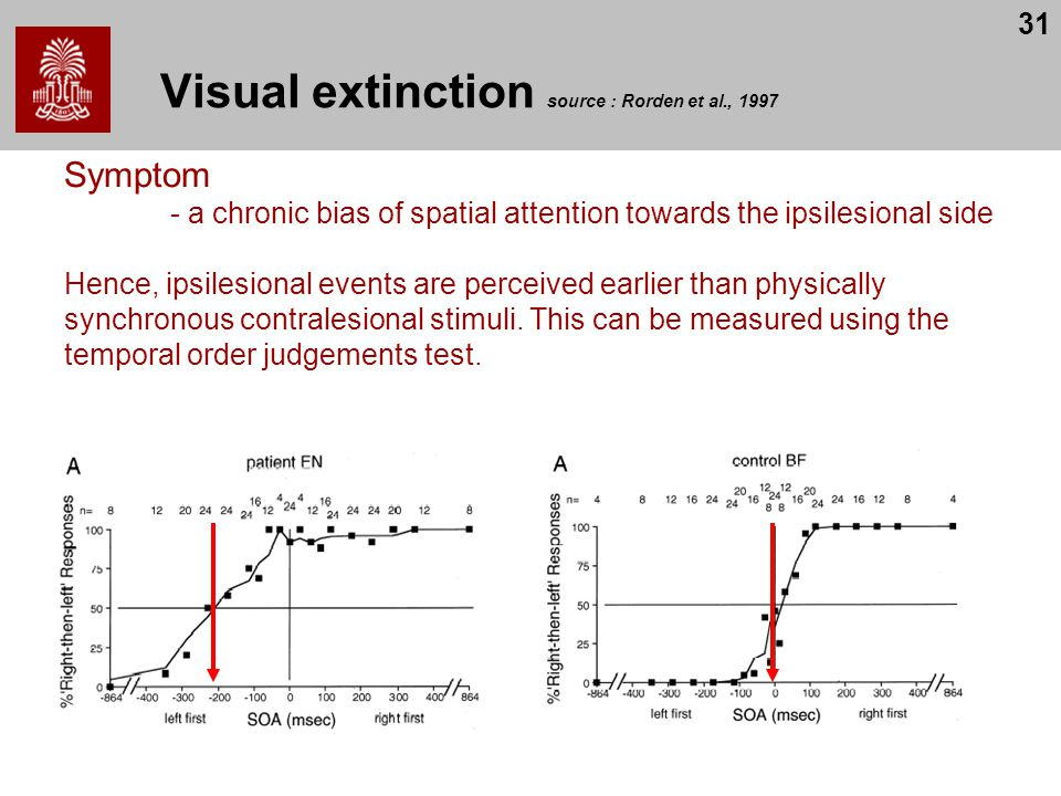 Visual extinction source : Rorden et al., 1997