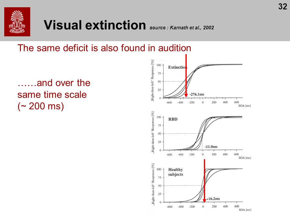 Visual extinction source : Karnath et al., 2002