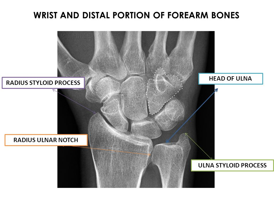 WRIST AND DISTAL PORTION OF FOREARM BONES RADIUS STYLOID PROCESS