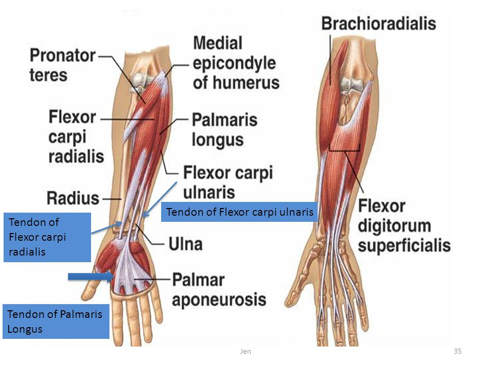 Tendon of Flexor carpi ulnaris Tendon of Flexor carpi radialis