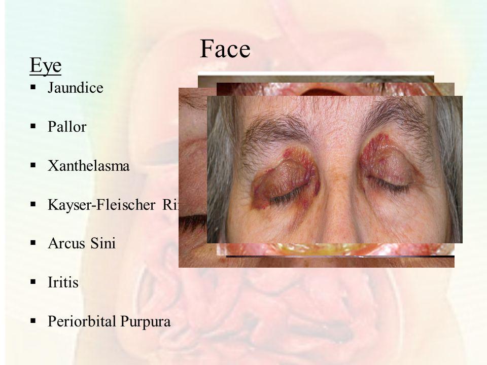 Face Eye Jaundice Pallor Xanthelasma Kayser-Fleischer Ring Arcus Sini