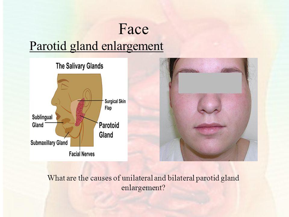 Face Parotid gland enlargement