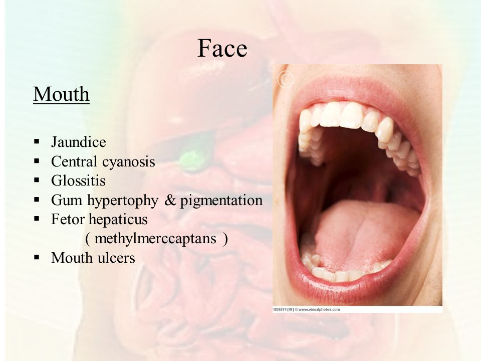 Face Mouth Jaundice Central cyanosis Glossitis
