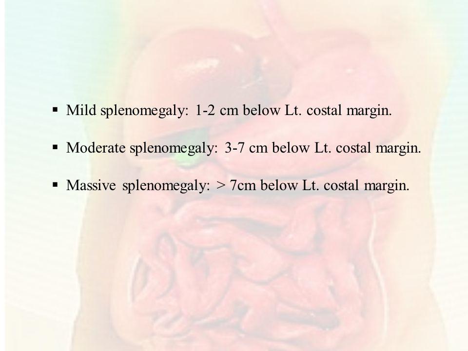 Mild splenomegaly: 1-2 cm below Lt. costal margin.