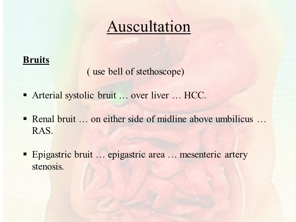 Auscultation Bruits ( use bell of stethoscope)
