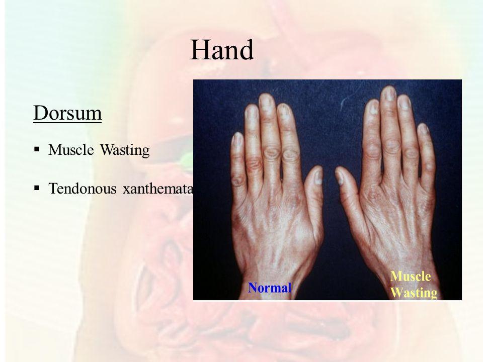 Hand Dorsum Muscle Wasting Tendonous xanthemata