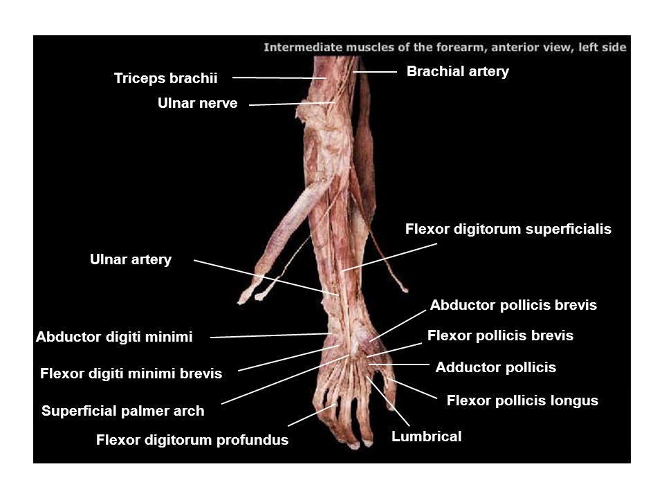 Brachial artery Triceps brachii. Ulnar nerve. Flexor digitorum superficialis. Ulnar artery. Abductor pollicis brevis.