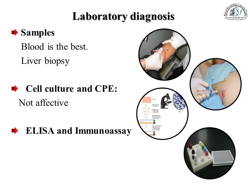 Laboratory diagnosis Samples Blood is the best. Liver biopsy