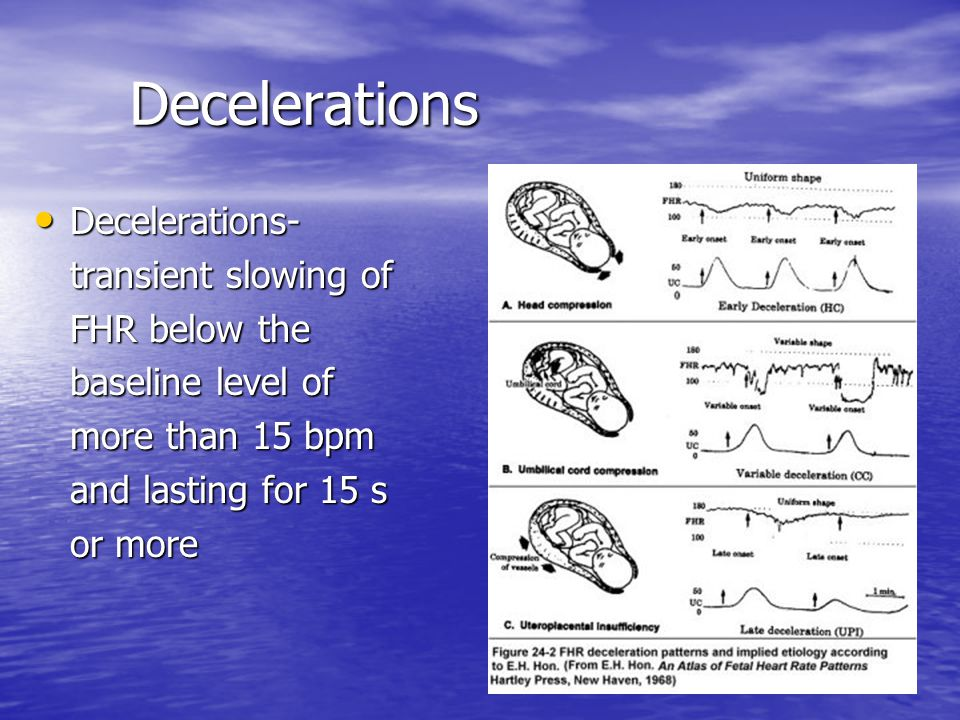 Decelerations Decelerations- transient slowing of FHR below the