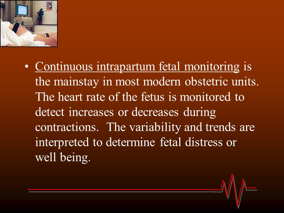 Continuous intrapartum fetal monitoring is the mainstay in most modern obstetric units.