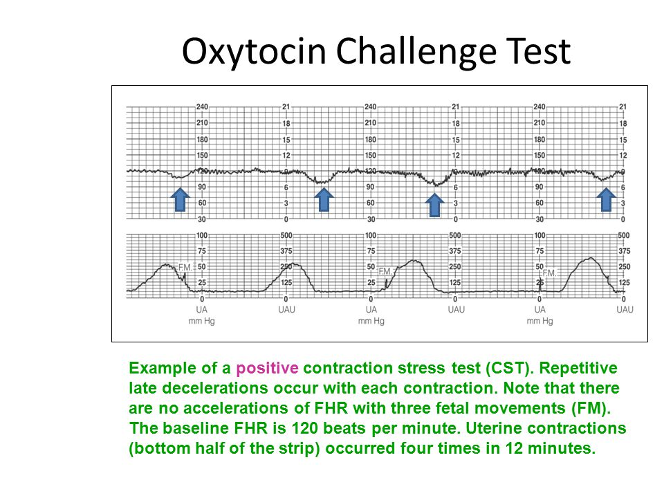 Oxytocin Challenge Test