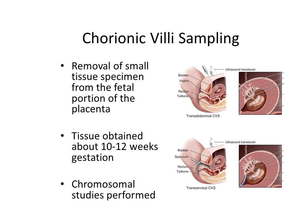 Chorionic Villi Sampling
