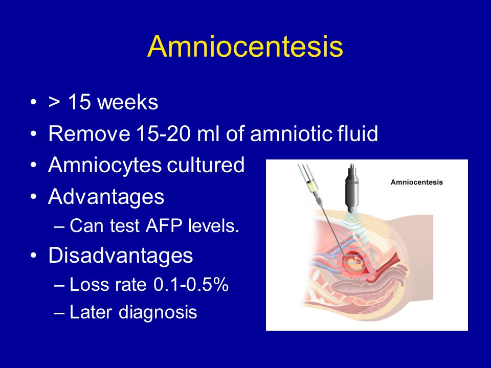 Amniocentesis > 15 weeks Remove 15-20 ml of amniotic fluid