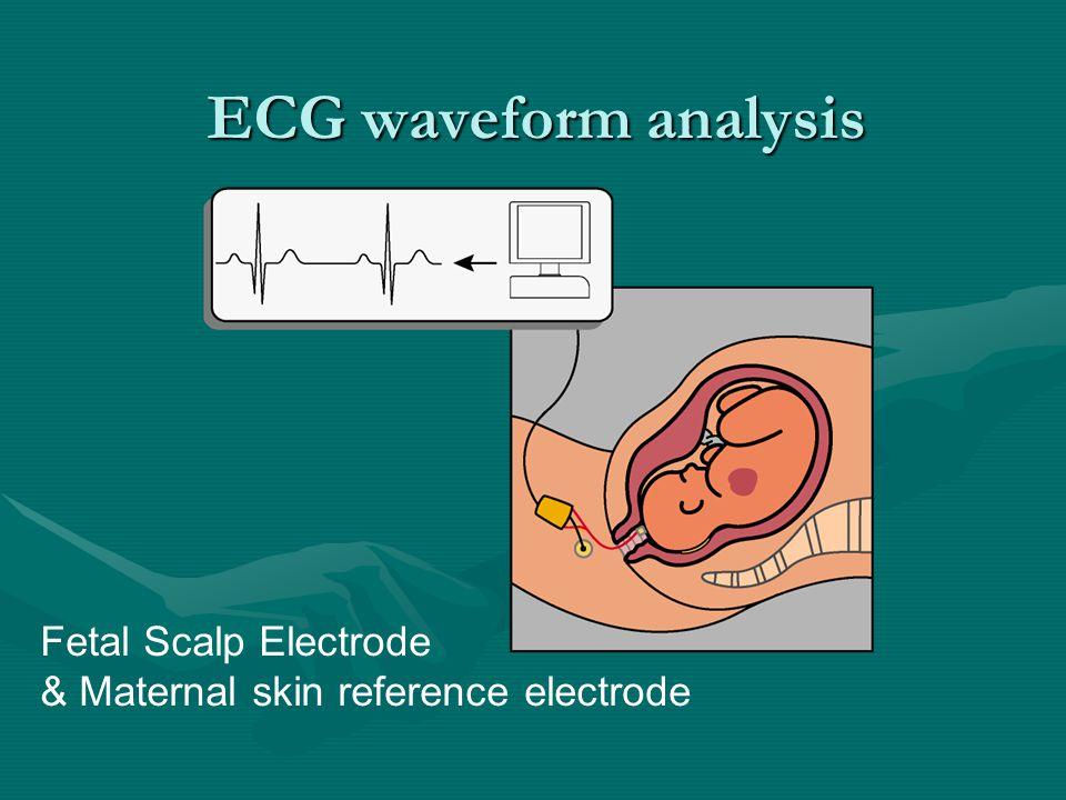 ECG waveform analysis Fetal Scalp Electrode