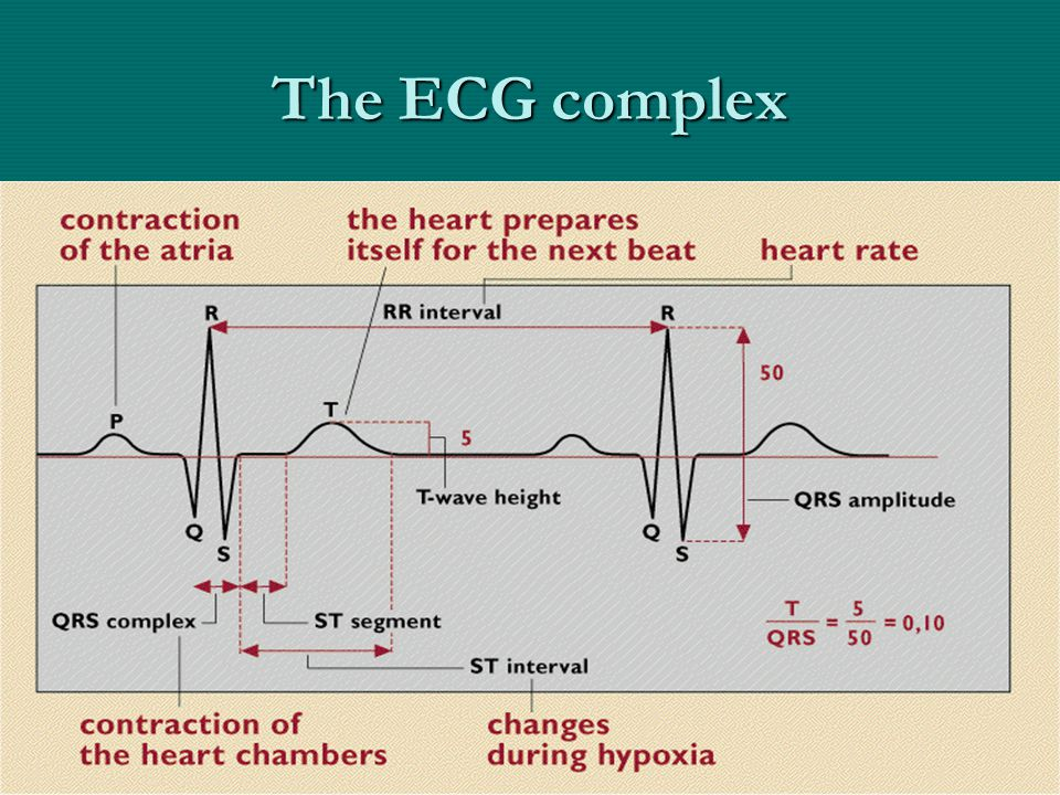 The ECG complex