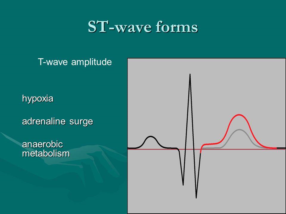 ST-wave forms T-wave amplitude hypoxia adrenaline surge