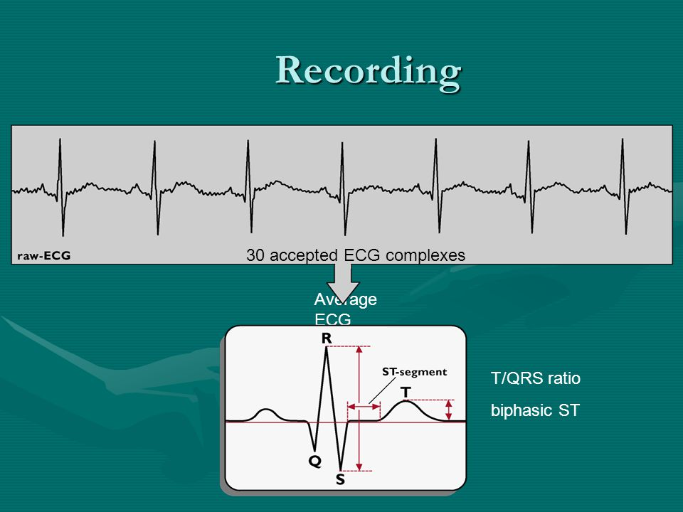Recording 30 accepted ECG complexes Average ECG T/QRS ratio