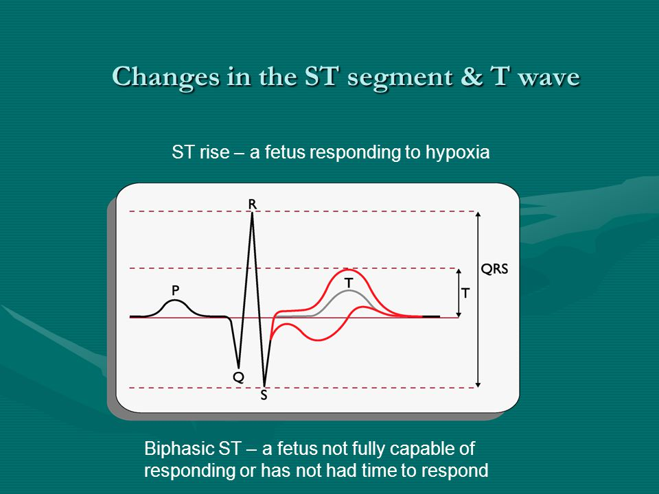 Changes in the ST segment & T wave