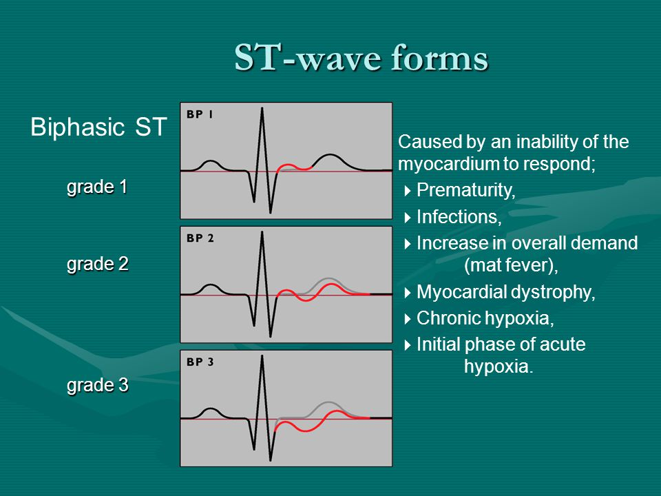 ST-wave forms Biphasic ST