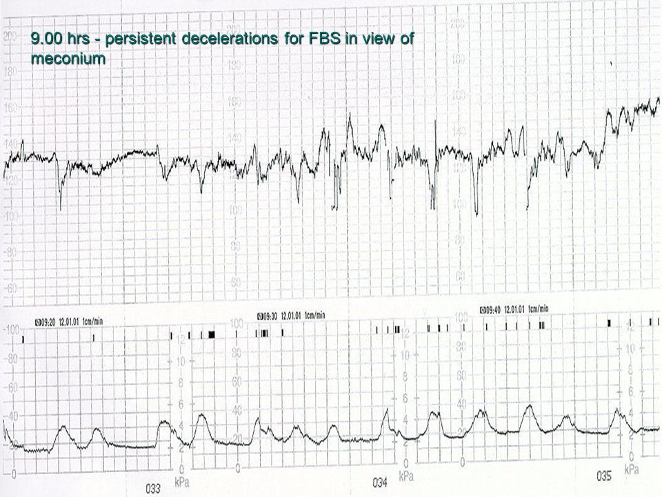9.00 hrs - persistent decelerations for FBS in view of meconium