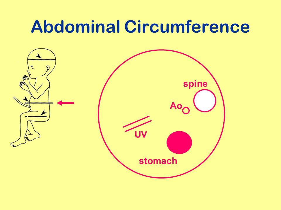 Abdominal Circumference
