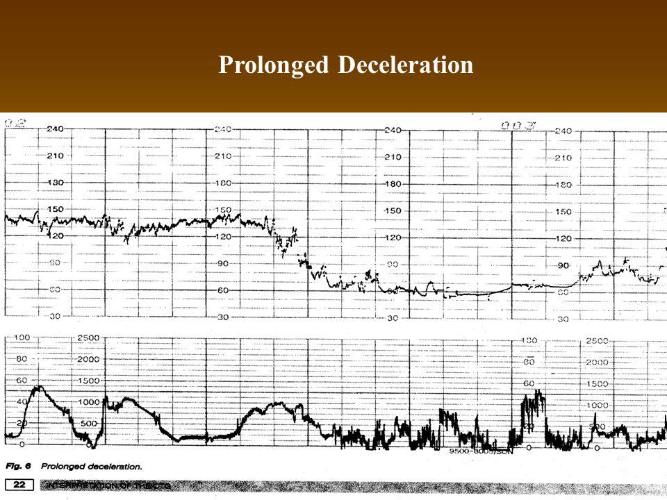 Prolonged Deceleration