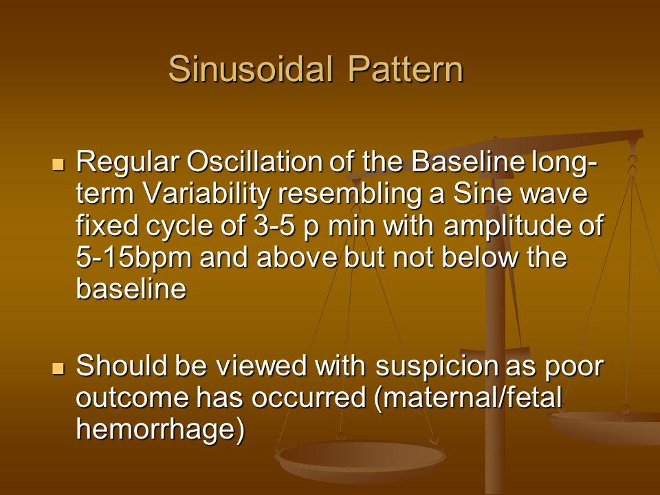 Sinusoidal Pattern