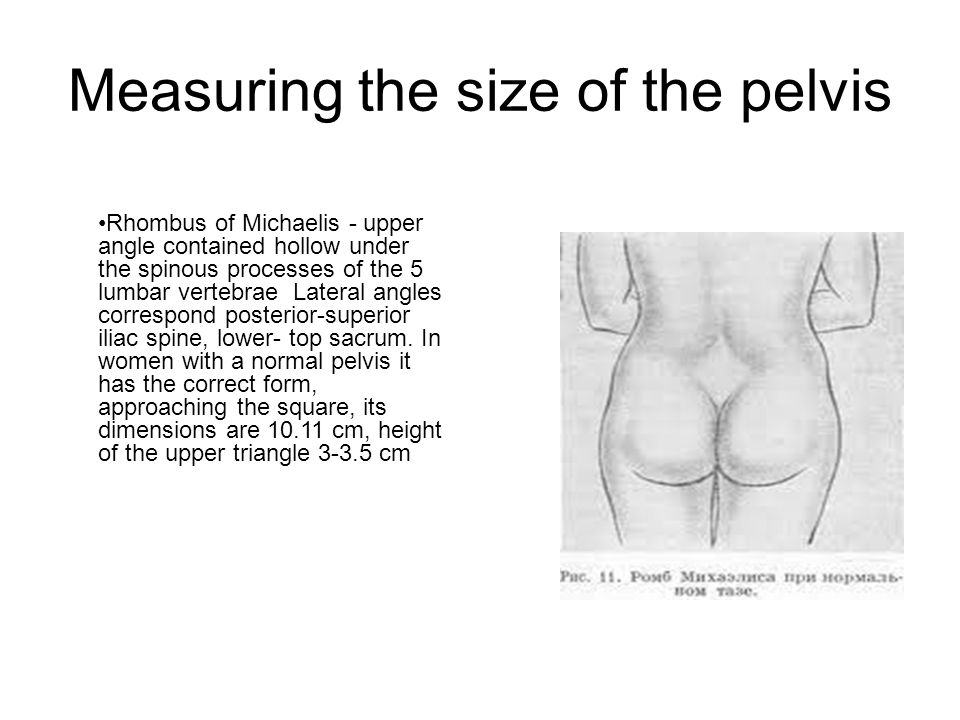 Measuring the size of the pelvis