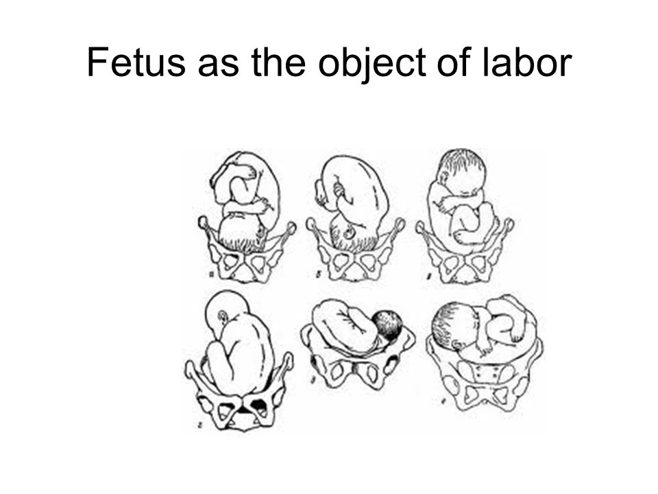 Fetus as the object of labor