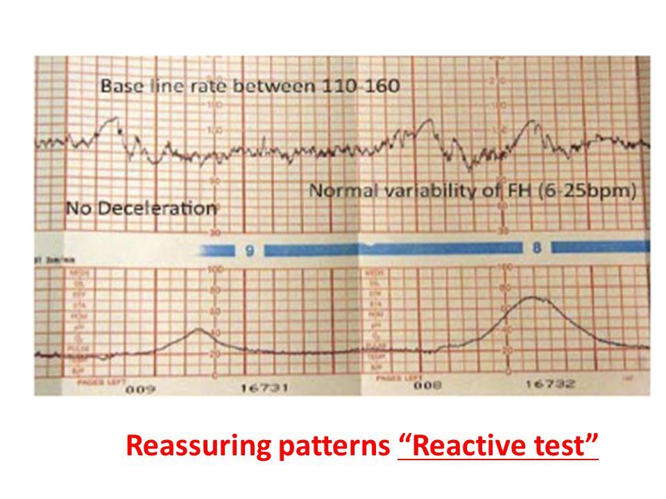 Reassuring patterns Reactive test