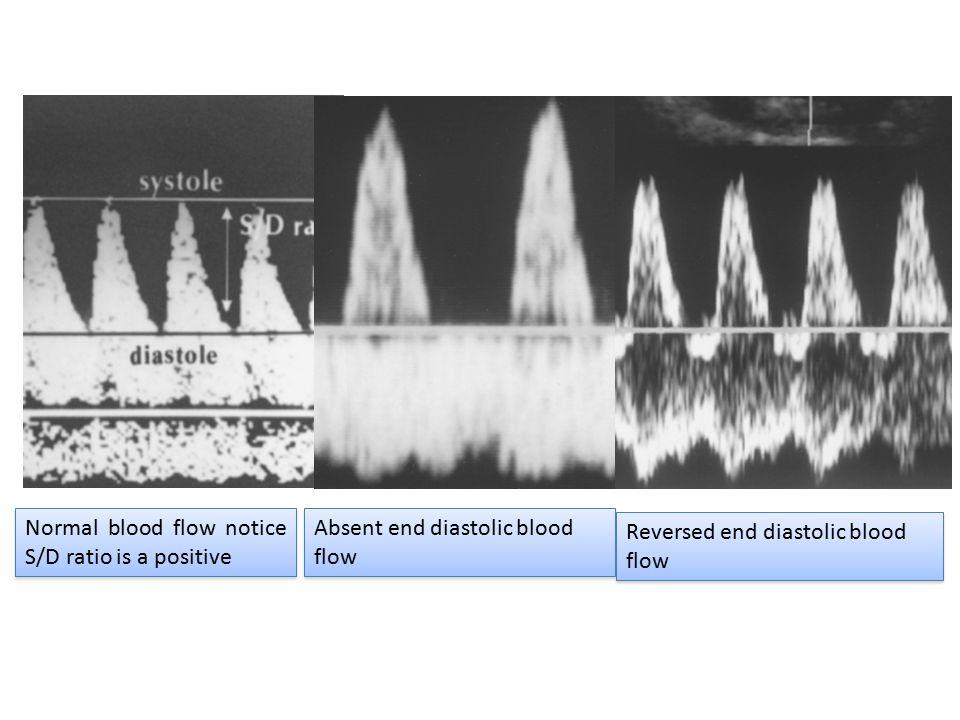 Normal blood flow notice S/D ratio is a positive