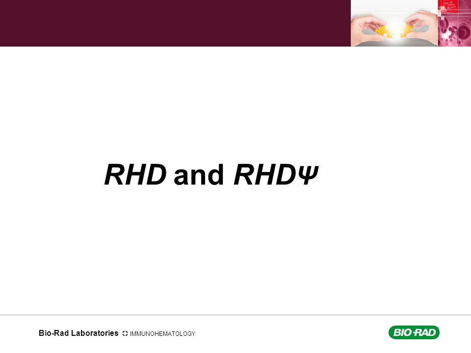 RHD and RHDΨ